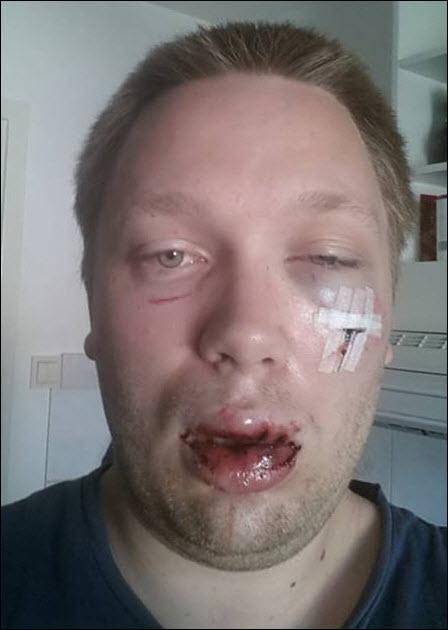 2013-08-24-02-58-11_svennejavel_misshandlad
