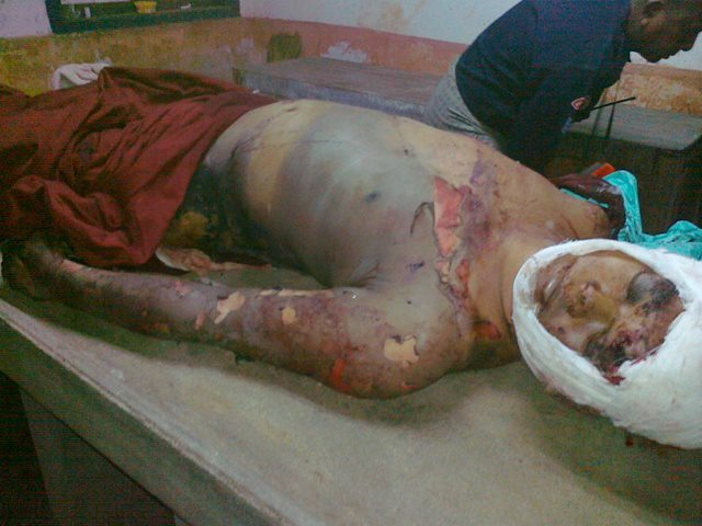Burmese Buddhist Monk burned with acid, slashed with knives, had genitals cut off by Muslims