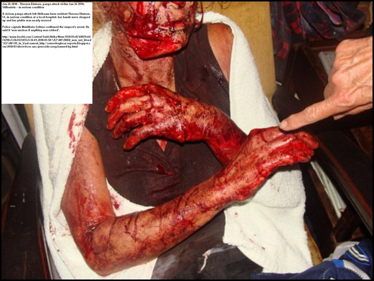 Theresa Eksteen panga attack survivor Jan262010 Stilfontein farm 51 serious condition_thumb[3]