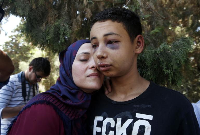 Tariq Abu Khdeir, with his mother, after being released from an Israeli hospital