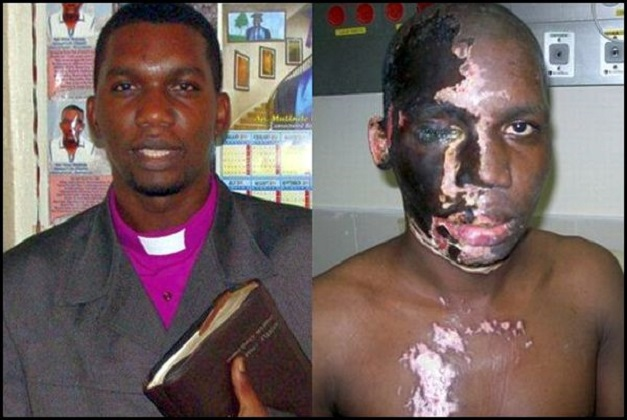 Pastor Principal / Obispo Umar Mulinde de Gospel Life Church International, fuera de Kampala, Uganda dijo Morning Star News que los médicos en Israel le salvaron la vista y el oído tras el ataque ácido que sufrió a manos de extremistas islámicos en la Nochebuena de 2011.