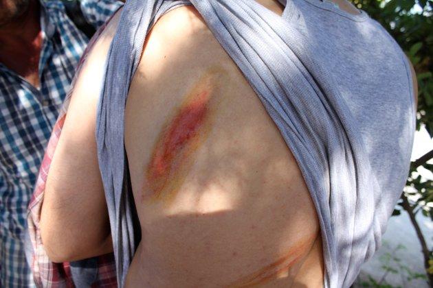 Musulmana muestra marcas de látigo en la espalda por lo que dijo fue un ataque por hombres armados enmascarados en aguas internacionales entre Turquía y la isla griega de Lesbos.