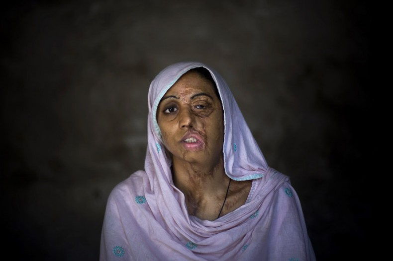 Shameem Akhter, 18, poses for a photograph at her home in Jhang, Pakistan. Shameem was raped by three boys who then threw acid on her three years ago. Shameem has undergone plastic surgery 10 times to try to recover from her scars. (AP Photo/Emilio Morenatti)