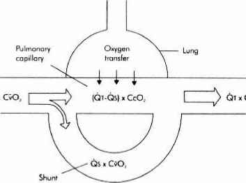 Physiological Shunt Venous Admixture Shunt Fraction