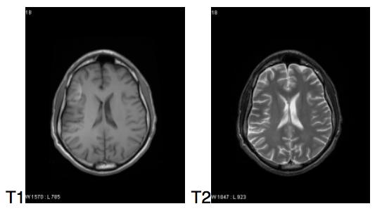 Barone Mnemonic MRI T1 verses T2
