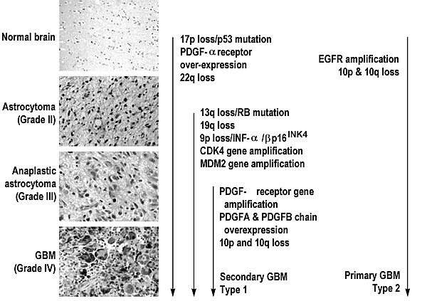 Genetics of Adult Malignant Gliomas