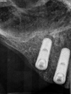 Final x-ray of Guided dental implant surgery