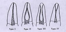 weine classification