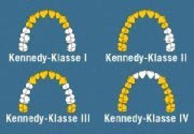 parital denture kennedy classification