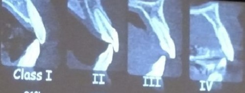 kan tooth bone position anterior