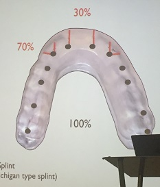 night guard occlusal device what are the different types of nightguards night guard occlusal device what