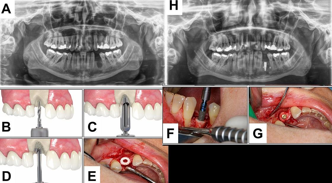 Vertical bone ring bone graft case photos.