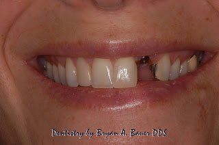 Image of dental implant missing tooth
