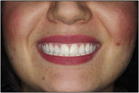 Smile arc with zero gingival display