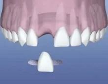 Dental Flipper Choices