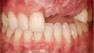 Tooth width and length - Bauer Smiles
