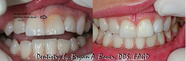 brown front tooth