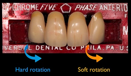 How to rotate teeth to hide a black triangle.