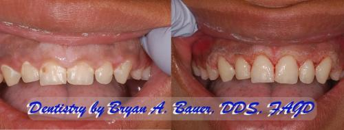 gingivectomy before and after