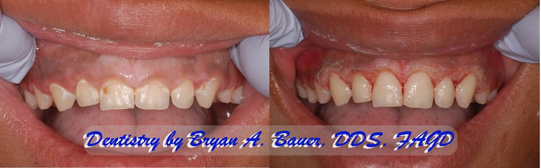 Gingivectomy of a gummy smile can really improve your look!