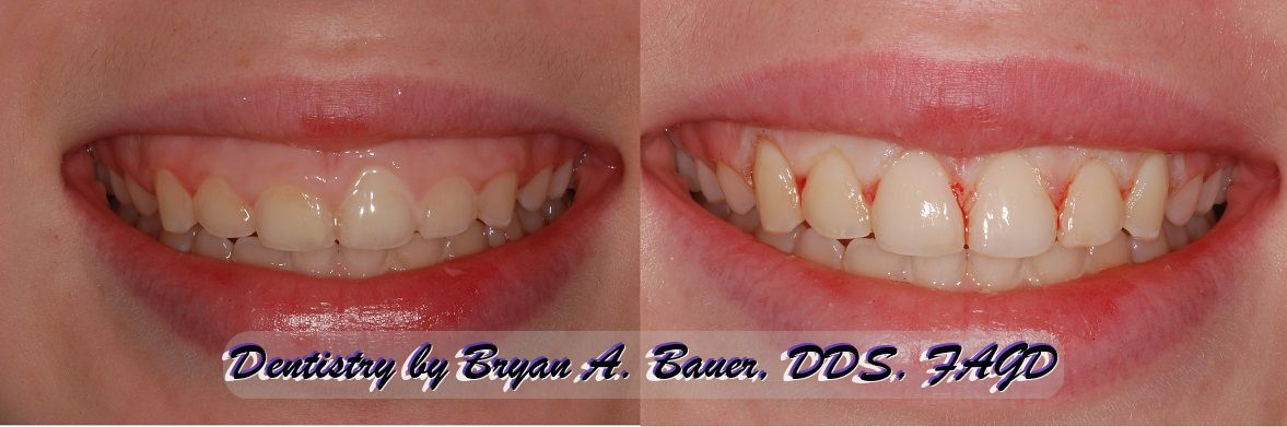 Laser gingivectomy treatment is a great treatment for a gummy smile.