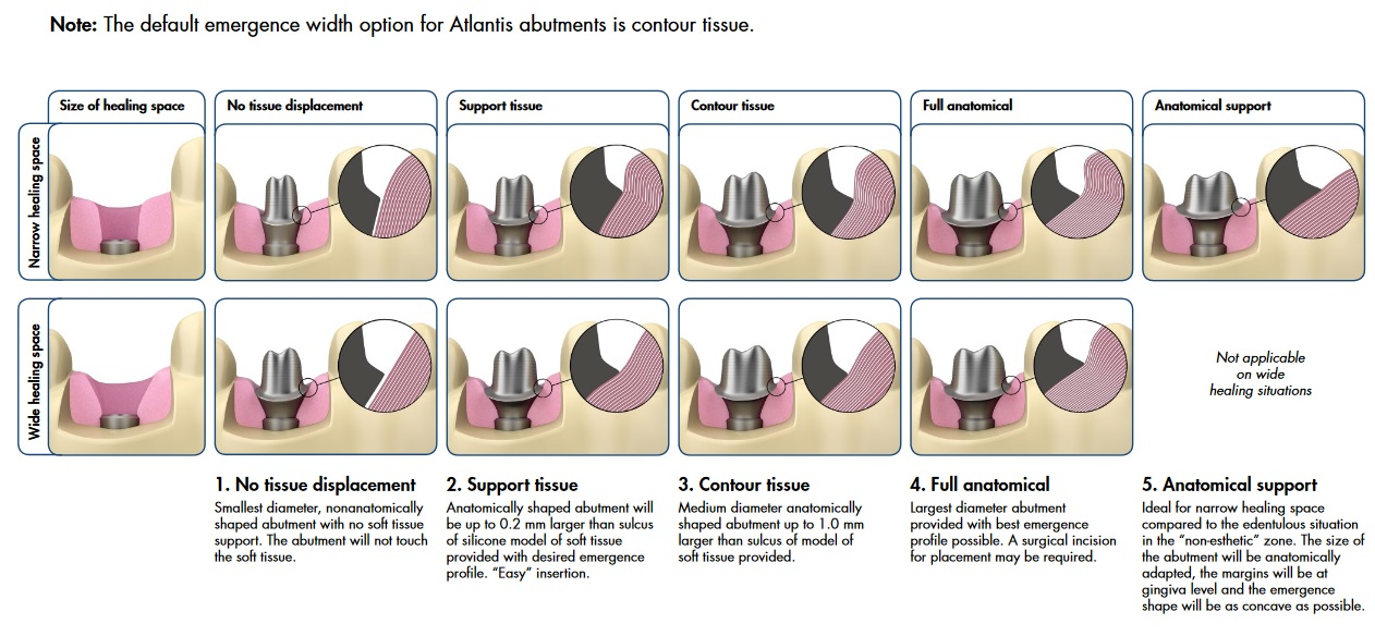 Image of options for custom abutment design