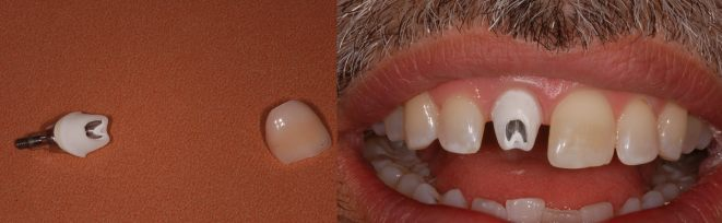 hybrid implant abutment