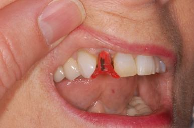 Image of how to cement implant crown