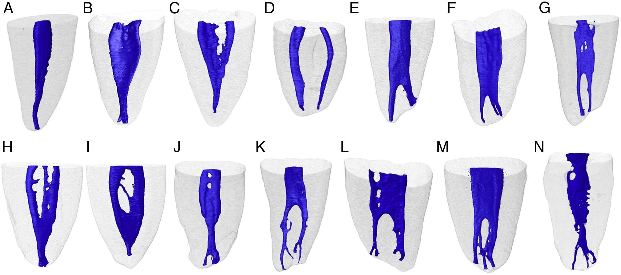 Root canal anatomy mandibular second molar & first - Bauer Smiles