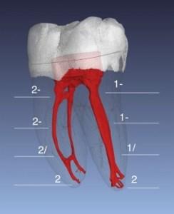 root canal anatomy mandibular molar