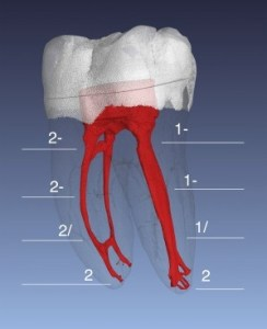 root canal anatomy mandibular molar