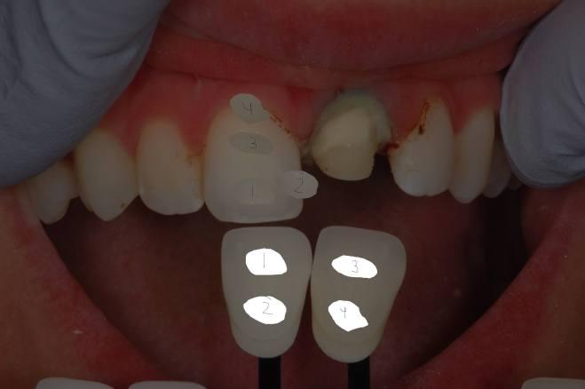 polar eyes dental shade determination