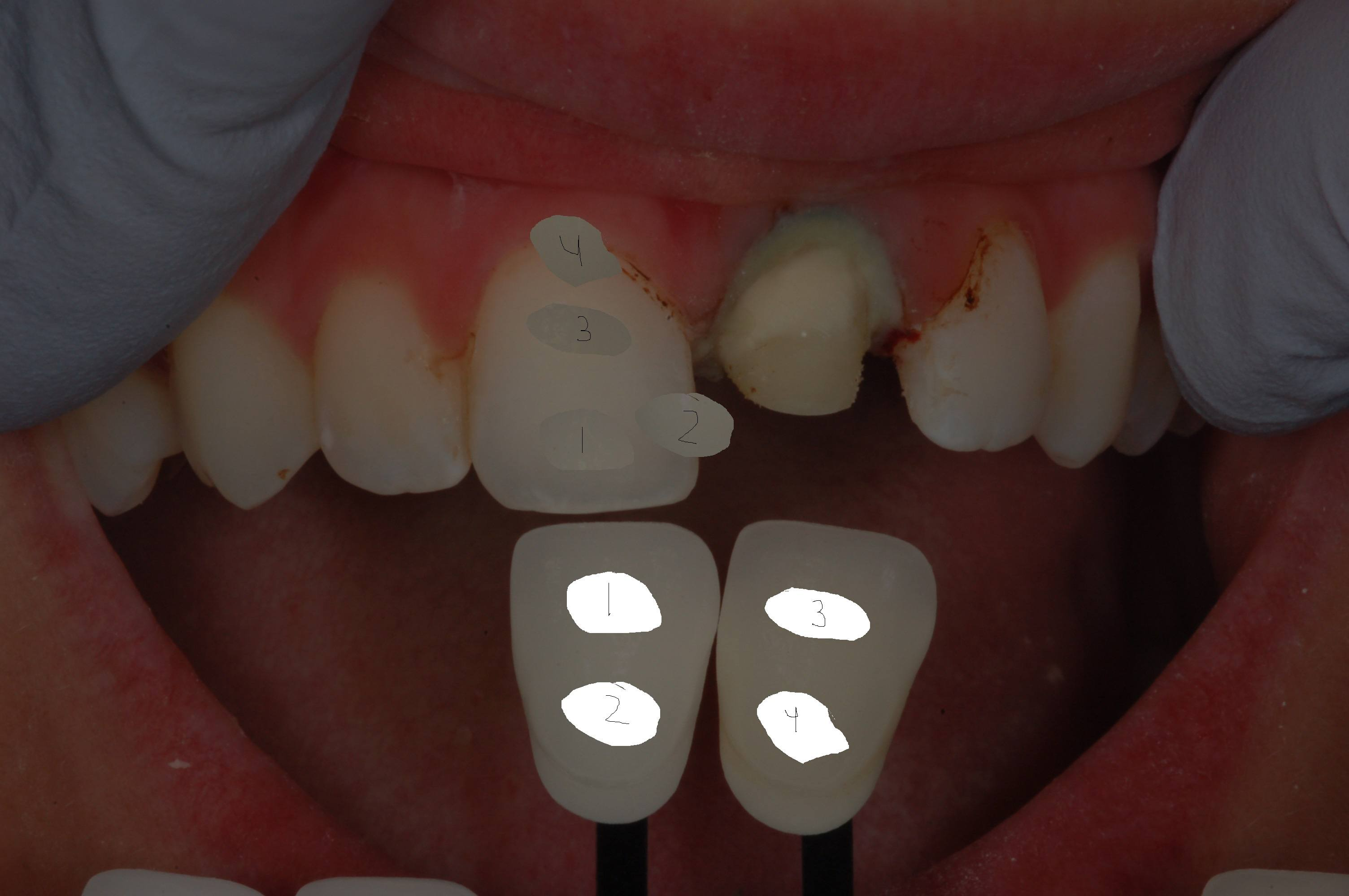 picture regarding Tooth Shade Chart Printable referred to as Dental coloration selection - How toward opt for the instantly colour
