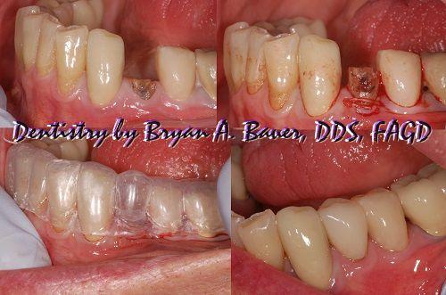 partial exodontic technique