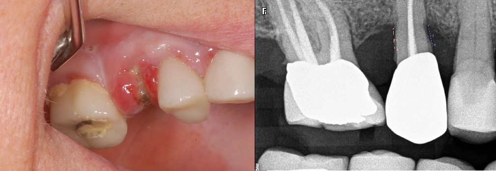Image of surgical extrusion technique complication