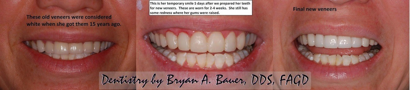 Dental veneers before and after - Bauer Smiles - Veneers cost?