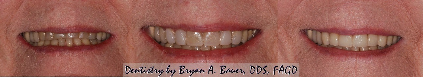 Iamges of dental veneers before and after