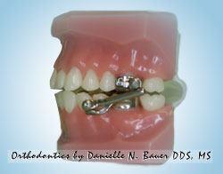 Herbst appliance Mara appliance - Wheaton orthodontist - Bauer Smiles