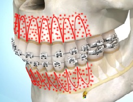 Accelerated Orthodontics Acceledent And Propel Bauer Smiles