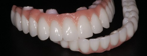 dental code hybrid denture