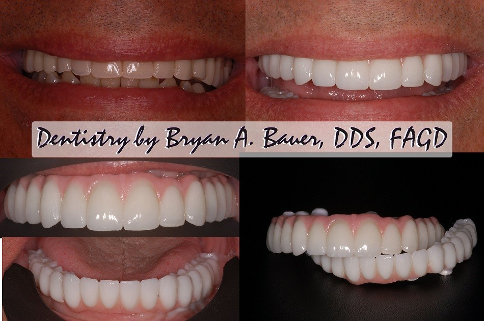 Implant supported dentures - Denture on dental implants