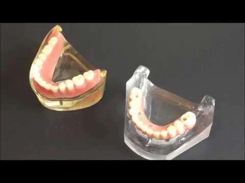 Implant supported dentures denture on dental implants bauer smiles
