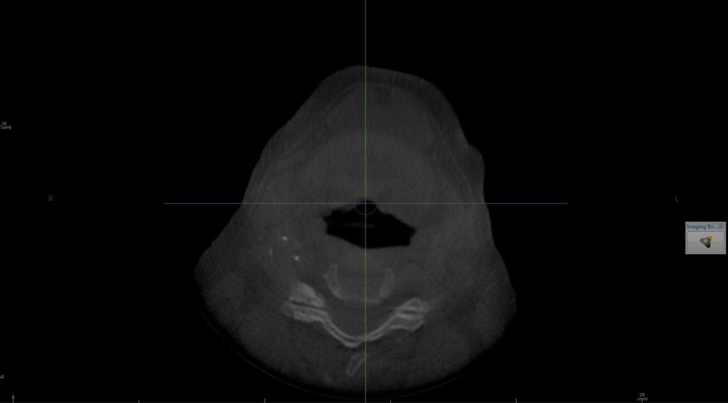 Calcification carotid CBCT