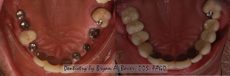 wheaton dental implants