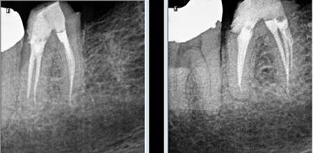 mid-mesial canal