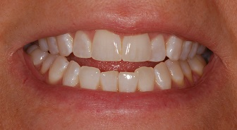 Photos of an example of an anterior open bite