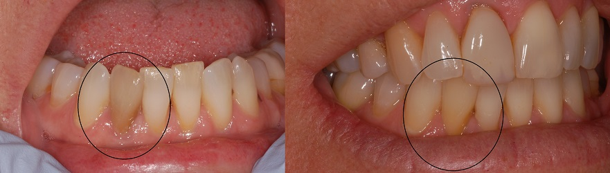 Dark front tooth treated with one internal bleaching treatment.
