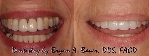 cosmetic dentisty