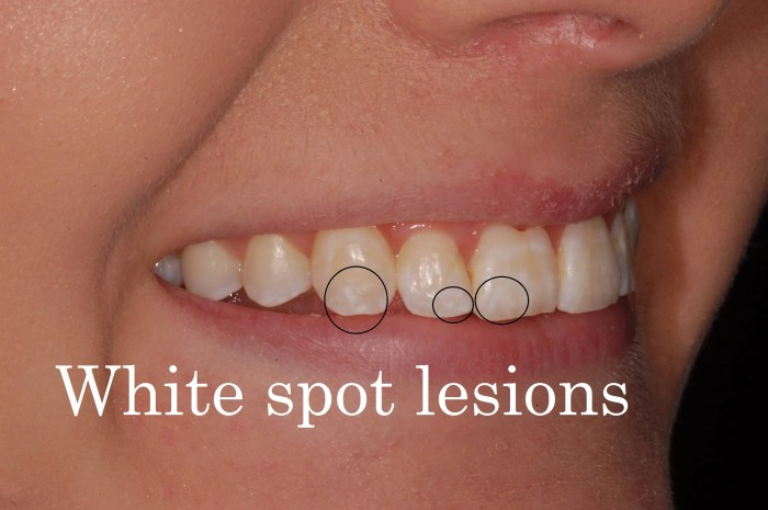 white spot lesion