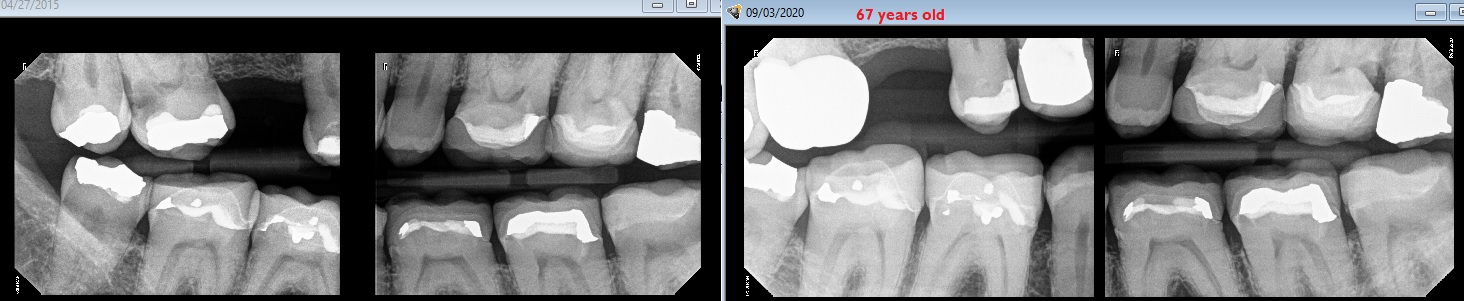 Abfraction on the distal of a molar and interproximal.